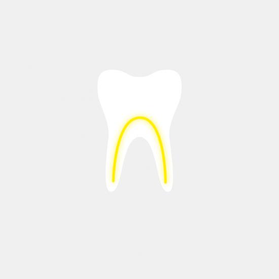 Endodontie (Wurzelkanalbehandlung)